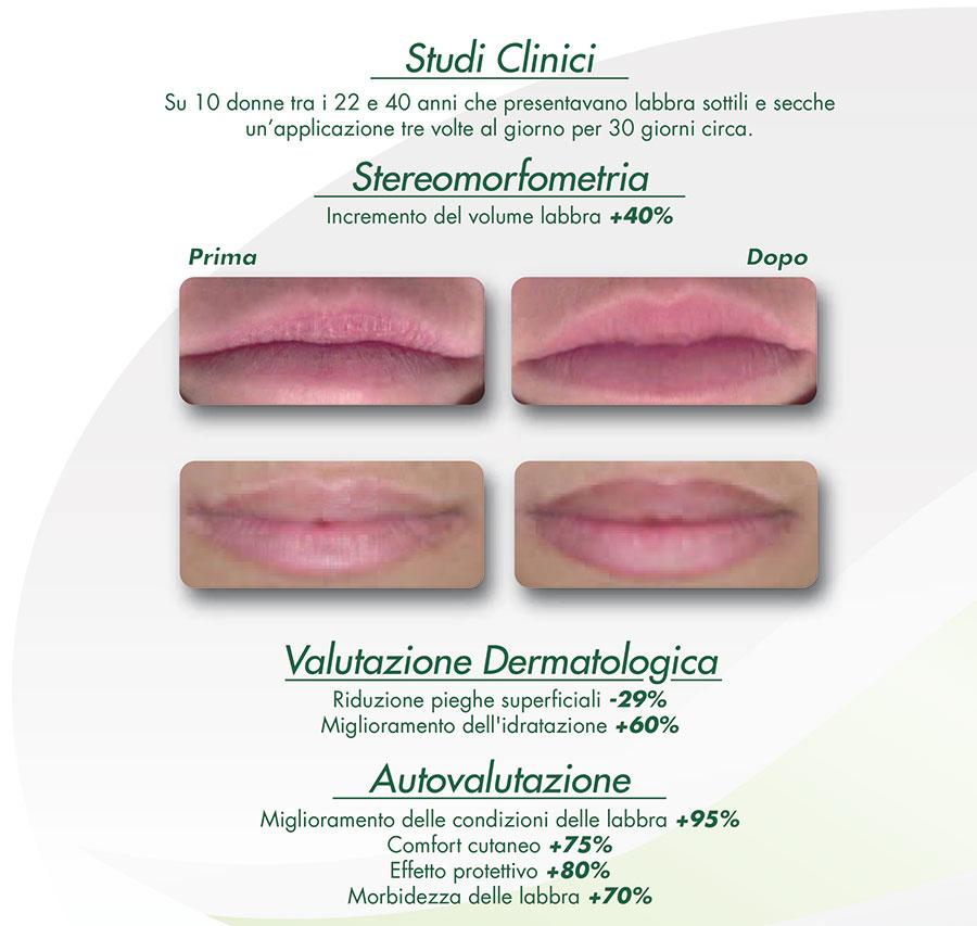 FULLIPS LABBRA LACOSÈR è il prodotto innovativo che assicura Volume, Contorno e Idratazione alle labbra